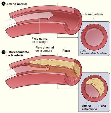 atherosclerosis_sp