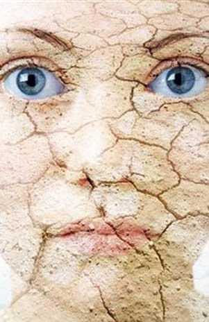 imagenes-de-caras-con-piel-seca-y-mascarillas-2